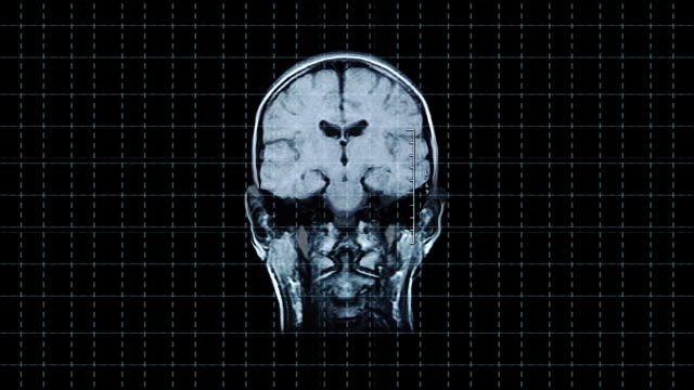 brain front mrt scan - midbrain stock videos & royalty-free footage