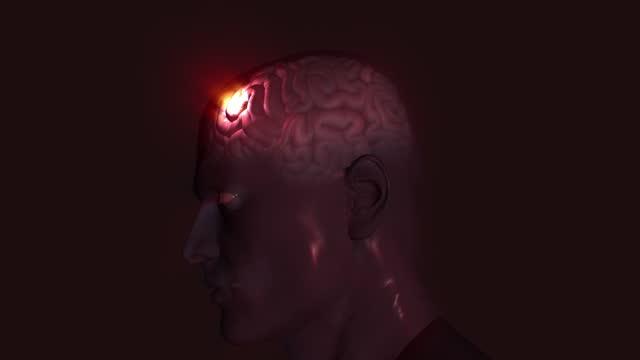 brain inflammation/stroke/hemorrhage - inflammation stock videos & royalty-free footage