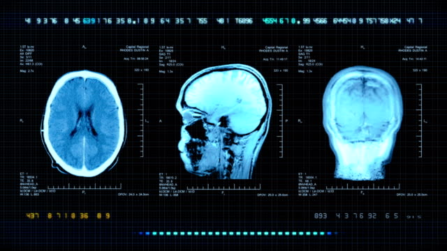 brain mri scan - biomedical animation stock videos & royalty-free footage