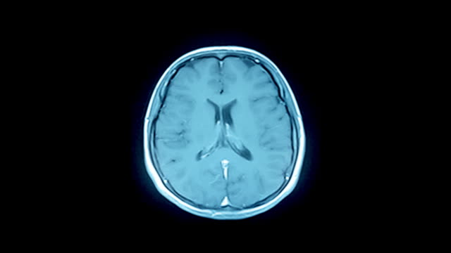 brain mri scan-a diagnostic method - midbrain stock videos & royalty-free footage