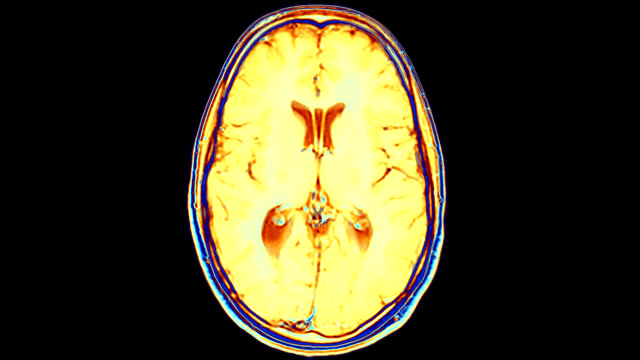 "stockvideo's en b-roll-footage met ""brain, mri scans"" - anatomie"