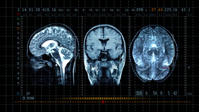 brain mrt scan display - biomedical animation stock videos & royalty-free footage