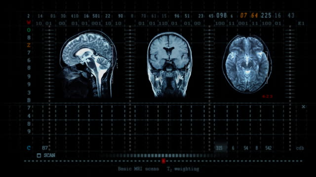 brain mrt scan - midbrain stock videos & royalty-free footage
