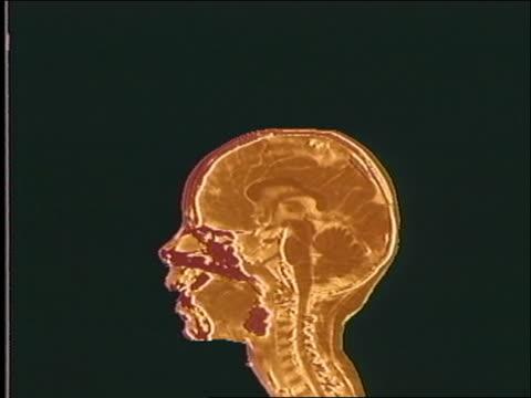 vidéos et rushes de cgi brain of 10 month old human baby / birth of the brain - human brain
