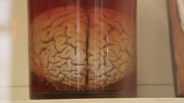 brain preserved in a jar of formalin at the fragonard museum, dedicated mainly to preserved animals and anatomical oddities on july 8 in maisons... - anatomy stock videos & royalty-free footage