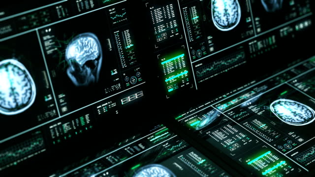mri brain scan computers - operating theatre stock videos & royalty-free footage