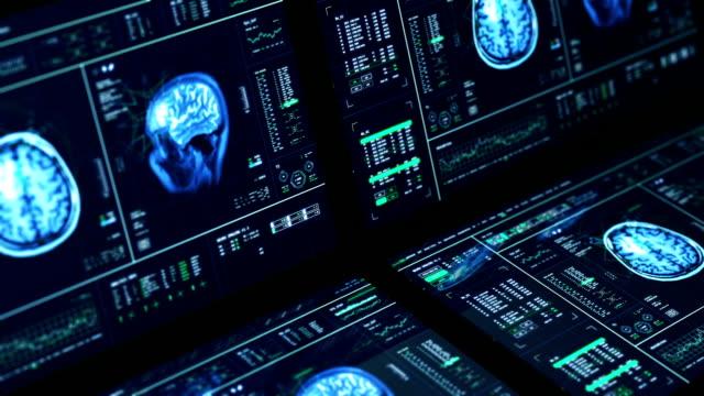 MRI Brain Scan Computers