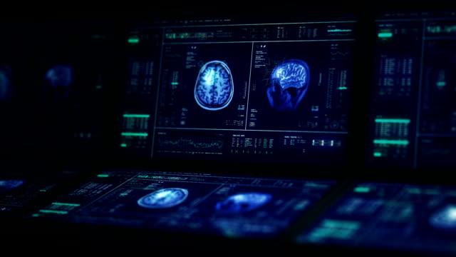 vídeos de stock e filmes b-roll de mri brain scan computers - human brain
