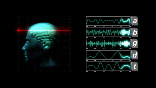 stockvideo's en b-roll-footage met brain scan display - tabel