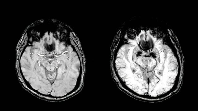ct brain scan image on magnetic resonance imaging (mri) - neurosurgery stock videos & royalty-free footage