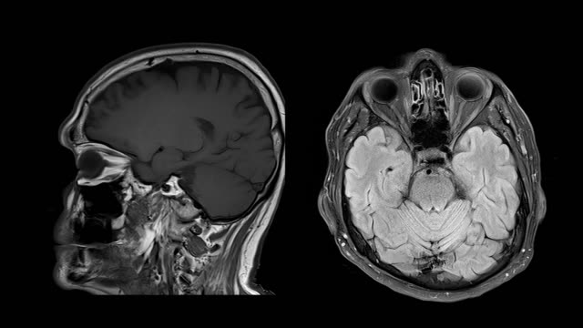 ct brain scan image on magnetic resonance imaging (mri) - tomography stock videos & royalty-free footage