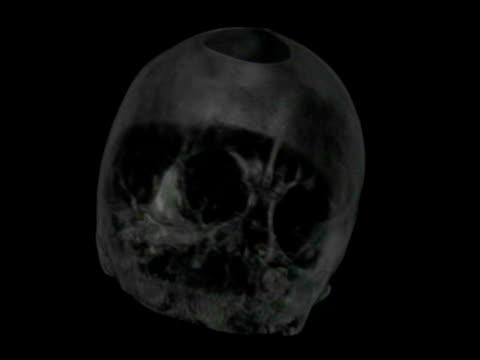 vídeos y material grabado en eventos de stock de brain scan showing blood vessels in the human brain. - arteria carótida