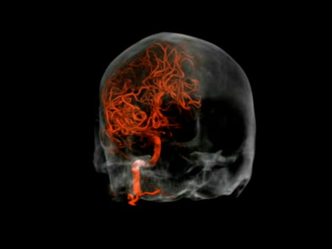 Brain scan showing the blood vessels (red) in the left cerebral hemisphere.
