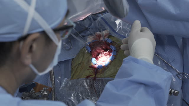 brain surgery - operation stock videos & royalty-free footage