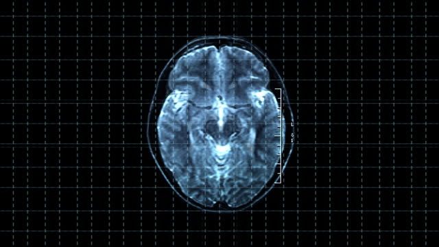 brain top mrt scan - midbrain stock videos & royalty-free footage