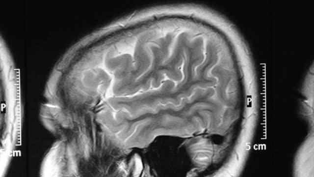 vídeos de stock, filmes e b-roll de cérebro - tumor cerebral
