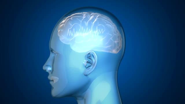 Gehirn mit Zickzack-Linien