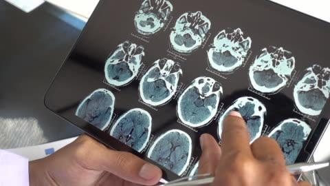 röntgenbild des gehirns - image stock-videos und b-roll-filmmaterial