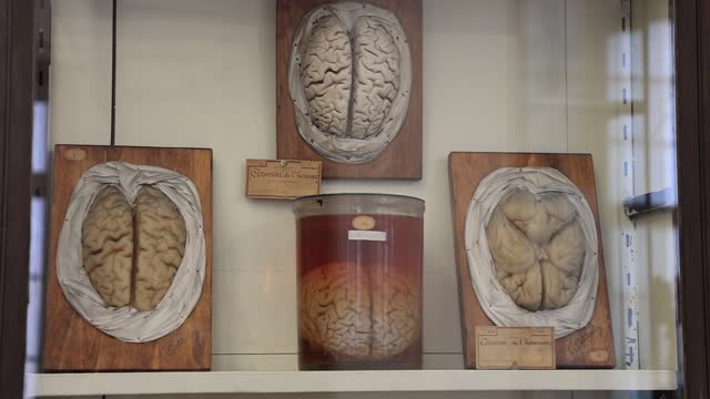 brains preserved in a jar of formalin at the fragonard museum, dedicated mainly to preserved animals and anatomical oddities on july 8 in maisons... - anatomy stock videos & royalty-free footage