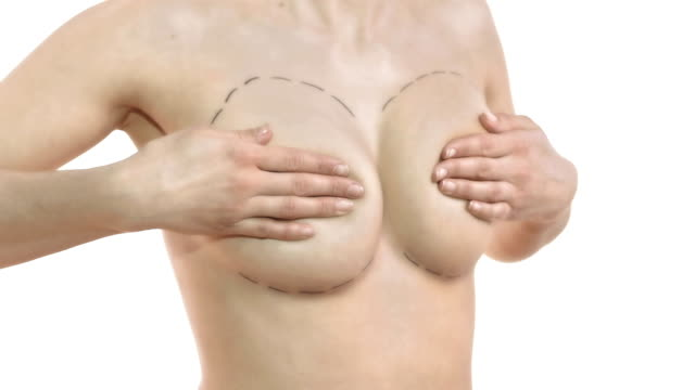 hd dolly: breast augmentation - breast augmentation stock videos and b-roll footage