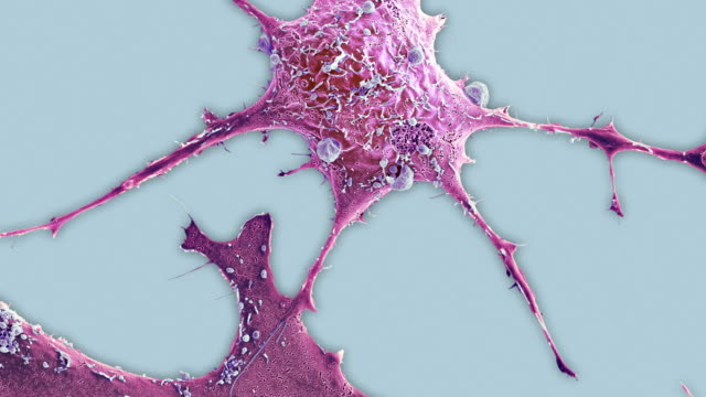 breast cancer cell, sem - magnification stock videos and b-roll footage