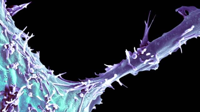 breast cancer cell, sem - microscopio elettronico a scansione video stock e b–roll