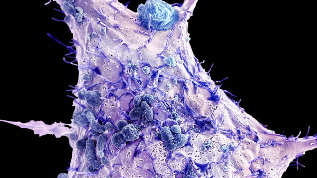 breast cancer cell, sem - micrografia video stock e b–roll