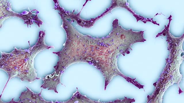 breast cancer cells, sem - micrografia elettronica a scansione video stock e b–roll