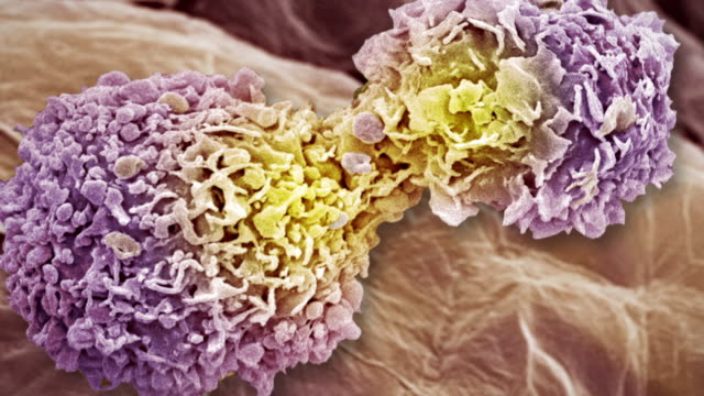 breast cancer cells - repetition stock videos and b-roll footage