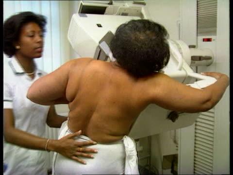 London St Barts Hosp SEQ Black woman having mammogram TX