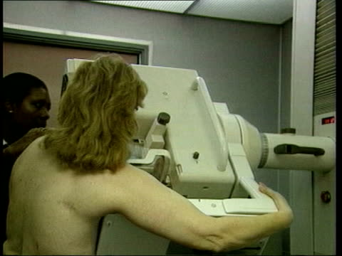 new findings itn seq woman given mammogram bv doctor holding xrays up to lightbox - lightbox stock videos & royalty-free footage