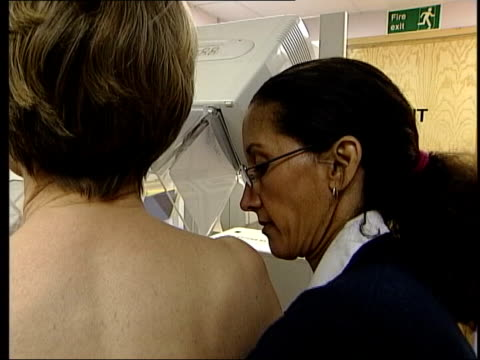 removal recommendations; itn lib from server england: ???: int woman undergoing mammogram doctors looking at mammograms on light box - scientific imaging technique stock videos & royalty-free footage