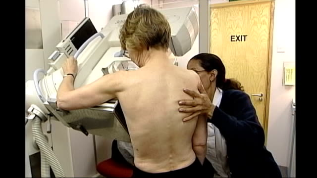 report suggests screening can lead to 'unnecessary treatment'; int woman undergoing mammogram monitor showing x-ray of breast tissue - scientific imaging technique stock videos & royalty-free footage