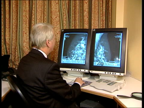 Breast cancer screening ITN Professor Stephen Duffy interviewed SOT Brest cancer screening delivers the substantial reductions in deaths from breast...