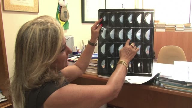 breast cancer survivor jany simon ferraz is one of 12500 brazilian women who received pip breast implants porto alegre brazil - breast augmentation stock videos and b-roll footage