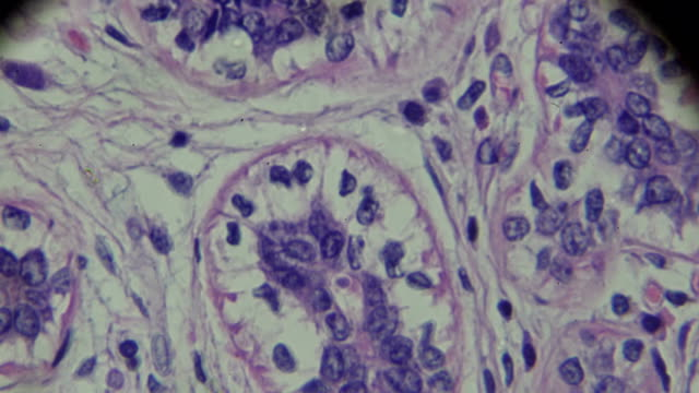 breast cancer under light microscopy - magnification stock videos & royalty-free footage
