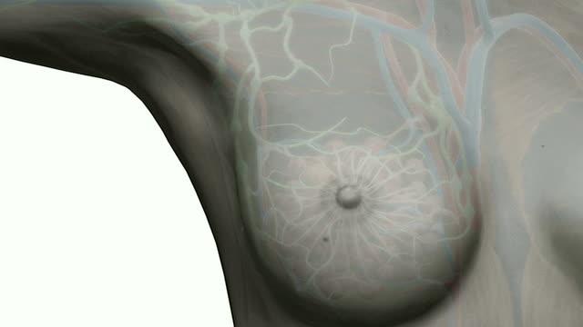 stockvideo's en b-roll-footage met breast cancer - borstkanker