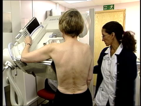 breast scans / mammograms carried out england london int back view of woman having mammogram breast scan in mobile screening unit nurse operating... - patientin stock-videos und b-roll-filmmaterial