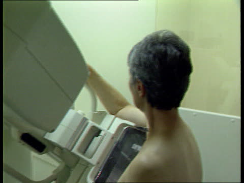breast screening campaign lib devon exeter royal devon exeter hospital int woman patient having mammogram taken bv technician putting breast xrays on... - patientin stock-videos und b-roll-filmmaterial