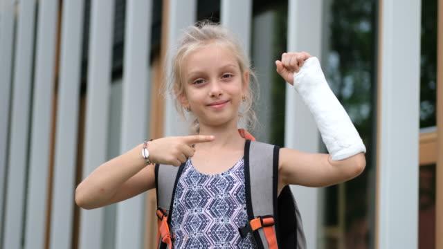 broken arm - plaster stock videos & royalty-free footage