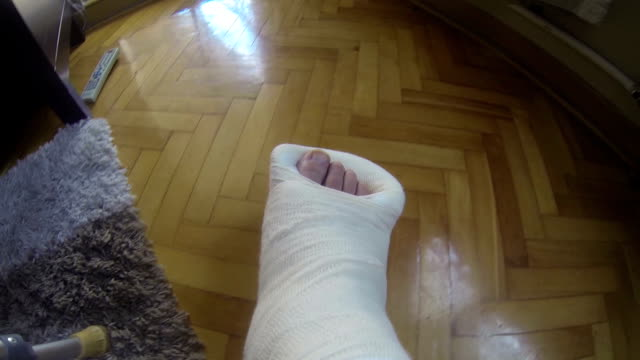 broken leg in a cast - toe stock videos & royalty-free footage