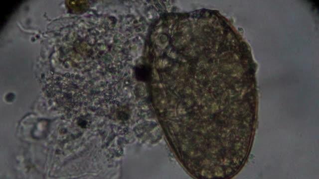 vídeos de stock, filmes e b-roll de solha brônquica; distoma pulmonale; mesogonimus westermani; paragonimus westermani; ovo sob microscopia de luz - teste de coloração
