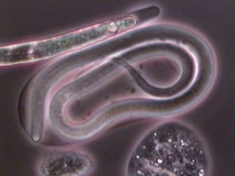 brugia malayi, light micrograph. this parasitic nematode worm is the cause of human lymphatic filariasis (elephantiasis).. - parasitic stock videos & royalty-free footage