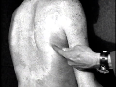 stockvideo's en b-roll-footage met cu burn scars perhaps from chemical warfare on a soldier's back arms and chest / france - gewonde