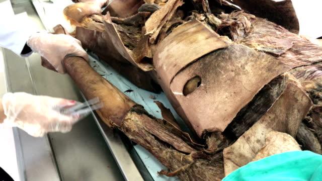 cadaver experiment - pathologist stock videos & royalty-free footage