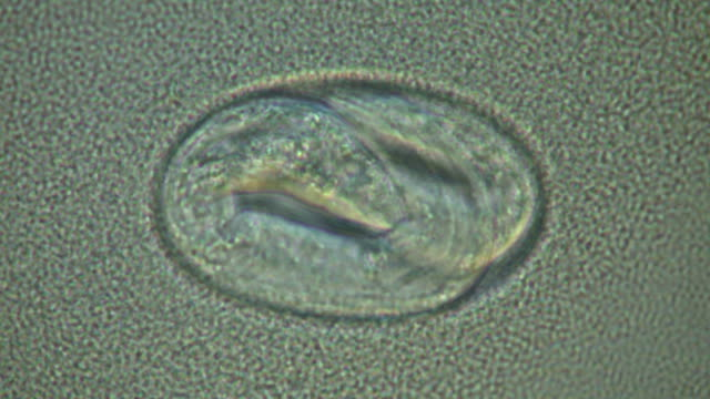 Caenorhabditis elegans egg with embryo moving inside, surrounded by bacterial suspension (E.coli OP50).