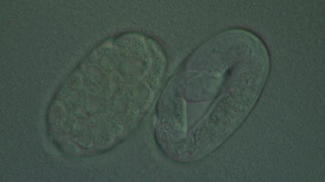 Caenorhabditis elegans eggs at different stages of development. Olympus BH-2 microscope, 60x S-Plan Apochromat objective, NFK 3.3 photoeyepiece, Differential Interference Contrast, horizontal field of view 90 microns. Time Lapse: 1 frame/second