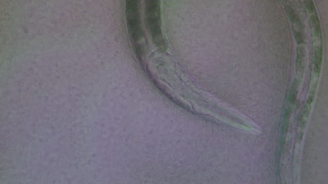 Caenorhabditis elegans (C.elegans) feeding on lawn of bacteria ( Escherischia coli OP50 )