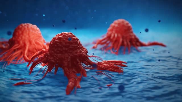 がん細胞vis - 転移性腫瘍点の映像素材/bロール