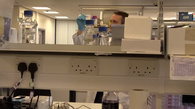 cancer focus ni charity-funded three-year programme with queen's university belfast will focus on two of the most deadly varieties of cancer - in the... - pancreas stock videos & royalty-free footage